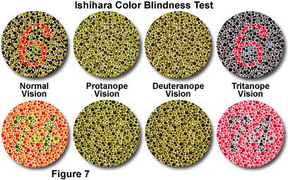 jenis buta warna